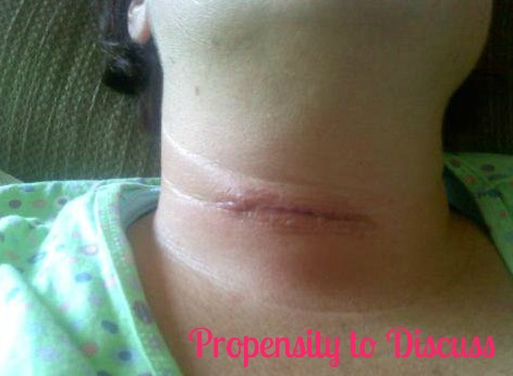 Post Op. I never imagined that one day I'd get hurt and never get better. A Propensity to Discuss Post. Syringomyelia